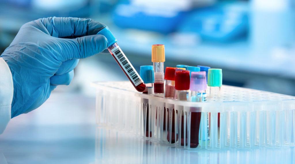 Heavy Metal Testing in Third Party Laboratories | Healthiest Alternative